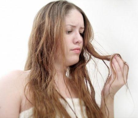 Perdita di capelli dopo la vitamina di complesso di consegna